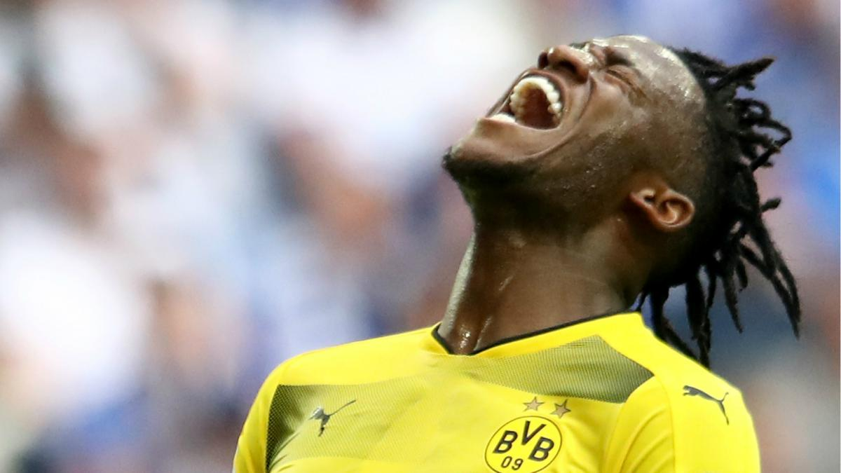 Batshuayi injured as Dortmund lose Ruhr derby