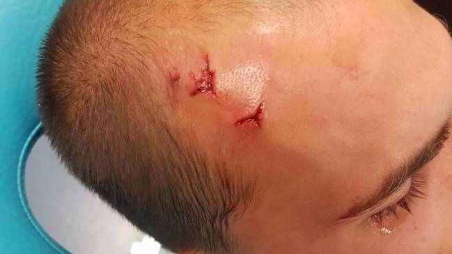 Bas Dost was injured after 50 ultras arrived at Sporting's training ground