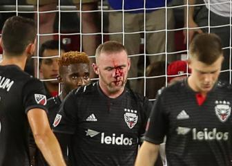Beaten black and Roo – DC United star breaks nose