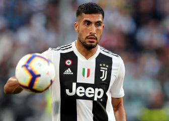 Allegri fears Emre Can will need surgery