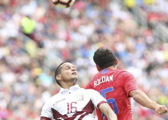 United States with its second loss before the Gold Cup