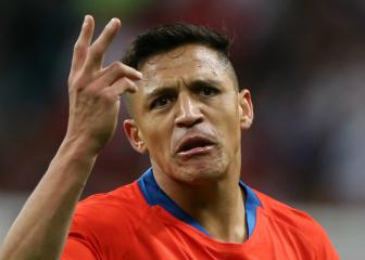 Sánchez limps out of Argentina clash