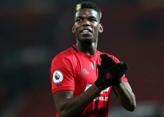 Pogba has ankle cast removed after surgery