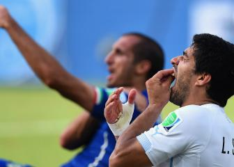 Chiellini says he understands Suárez bite: