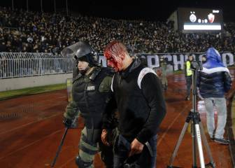 Belgrade derby descends into scenes of bloody violence