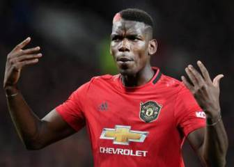 Pogba's mysterious injury