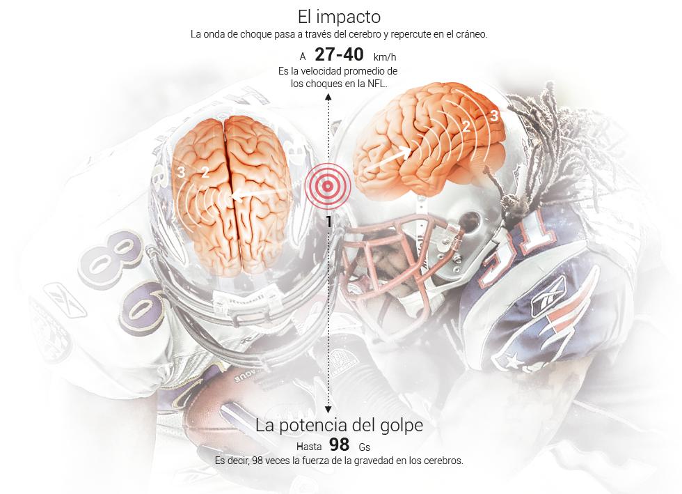 Cuánto tiempo durará la contusión cerebral