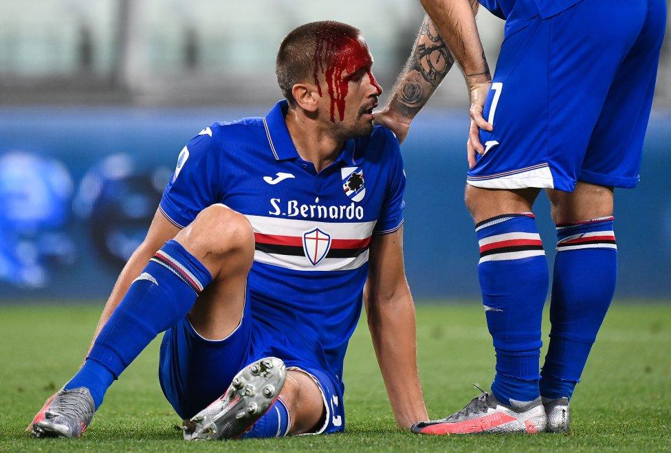 El delantero argentino de la Sampdoria, Gastón Ramírez, sangra durante el partido de fútbol de la Serie A italiana entre la Juventus y la Sampdoria.