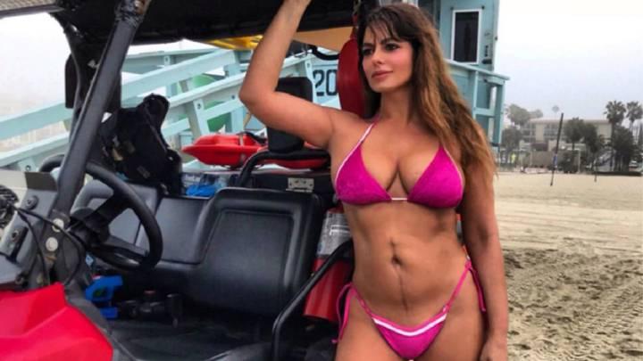 Marisa Jara enseña en bikini la cicatriz que le dejó su lucha contra el cáncer