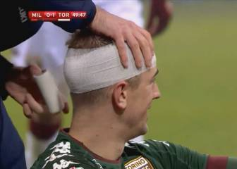 Torino's Joe Hart takes studs to the head...plays on!